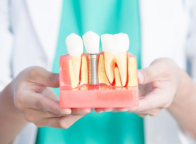 画像:人工歯根=インプラント